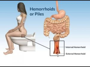 how do you get rid of hemorrhoids at home